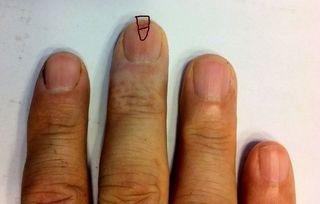 トゲが爪に刺さった〜。下半分が残ってしまった部分。